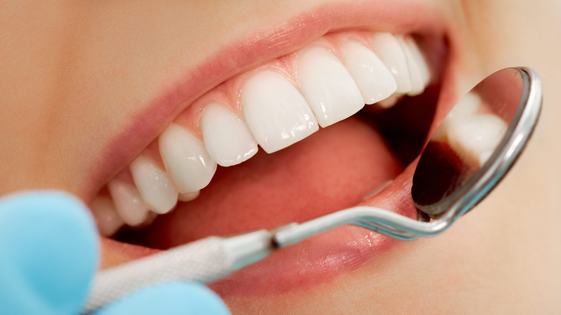 How To Strong Your Weak Teeth Enamel with these tips?